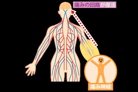 痛み神経が興奮して痛みの回路が復活する