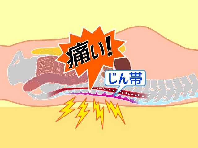 腰痛での痛み